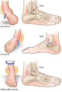 Trail runners know how easy it is to twist and sprain an ankle, so we dug into the research about ankle sprains and whether balance training was an effective prevention and treatment method: http://runnersconnect.net/running-injury-prevention/trailrunning-ankle-sprain-and-balance/ #runchat #fitfluential #runninginjuries #runningtips