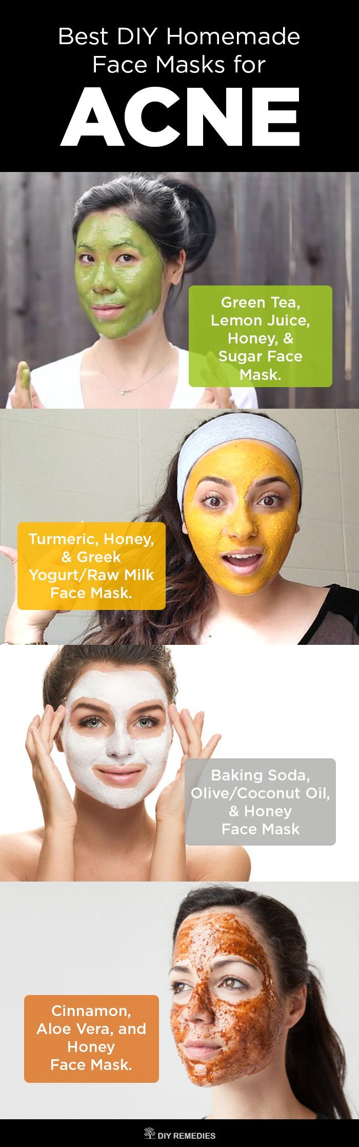 6 Best DIY Homemade Face Masks for Acne , Follow PowerRecipes For More.