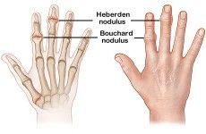 Heberden nodulus (klik op foto voor vergroting) [bron: www.emedicinehealth.com]