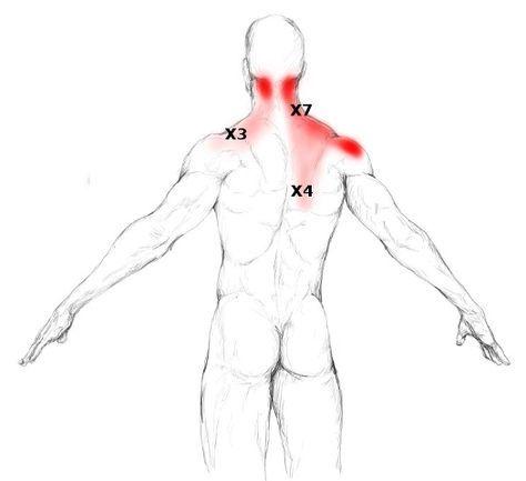Befreien Sie sich von Ihren Trapezius Schmerzen und Triggerpunkten durch eine einfache Selbstmassage.