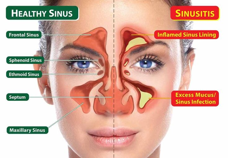 Best Natural Cure Sinus Infection