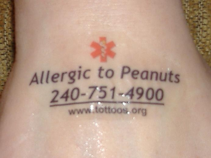 72 best going nuts images on pinterest food allergies for Allergic reaction to temporary tattoos