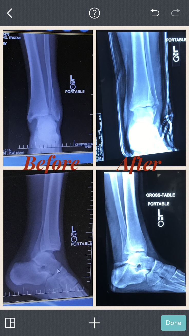 Dislocation of my Tristan's ankle and broken fibula from baseball. He was sliding into home plate and the plate was raised. 😡 Tore ligaments and tendons too. All 4 X-rays are pre surgery but the after pics are after they had put him out and fixed his dislocated ankle.