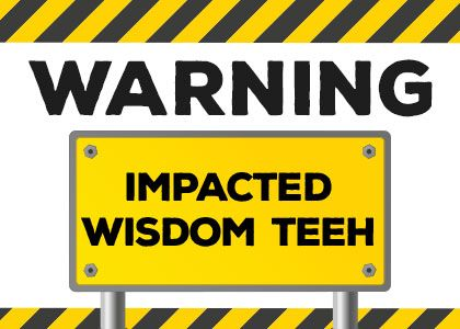 Fuquay-Varina dentists, Dr. Todd Huff & Dr. Beejal Huff explain what signs might mean you have impacted wisdom teeth and if you might need them extracted.