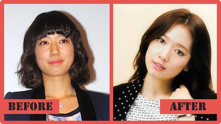 Park Shin Hye Celebrities With Plastic Surgery Speculation