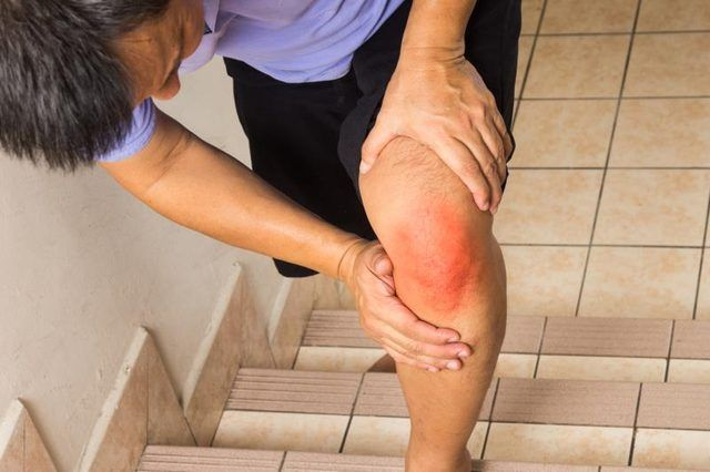 Ligament Tear & Knee Hyperextension : Ice can help ease pain from a ligament tear.