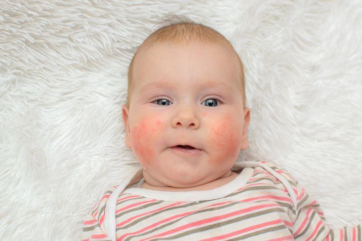 HelloBaby! magazin – Allergiás a babám?