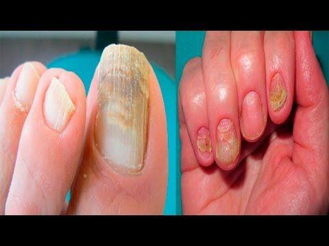 ¡Elimina los hongos de tus uñas en 10 minutos! - Hongos nunca mas con estos remedios - YouTube