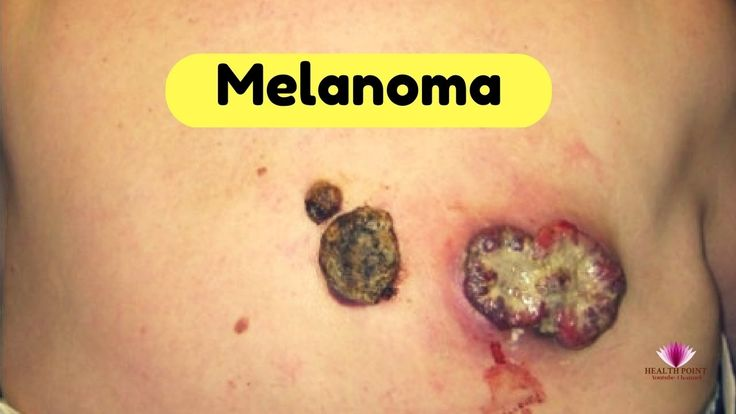 Melanoma Causes, Signs, Symptoms, and Treatment #Melanoma #MelanomaSymptoms  https://youtu.be/57qjcNkSy5o
