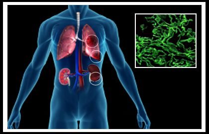 #Goodpasture is a rare but serious auto-immune disorder that attacks #kidneys as well as lungs. This #disease occurs when the body's immune system mistakenly produces anti-bodies against collagen (#protein that helps in the formation of connective tissue) present in kidneys and #lungs