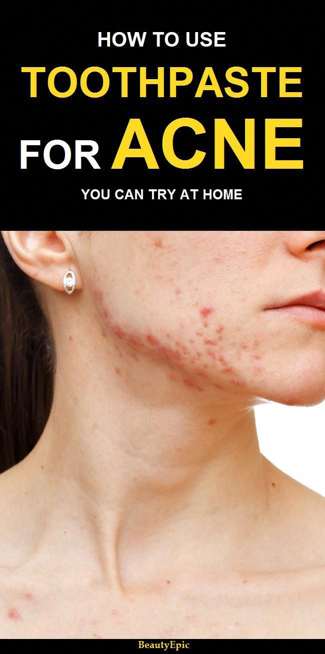 how does toothpaste help with acne? | acne is awful | pinterest