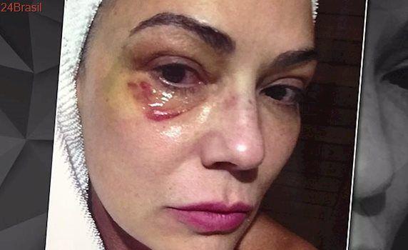 Episódio aconteceu em 2016: Justiça condena Lírio Parisotto por agressão contra atriz Luiza Brunet