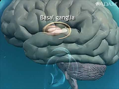 Athetosis resulting from basal ganglia injury