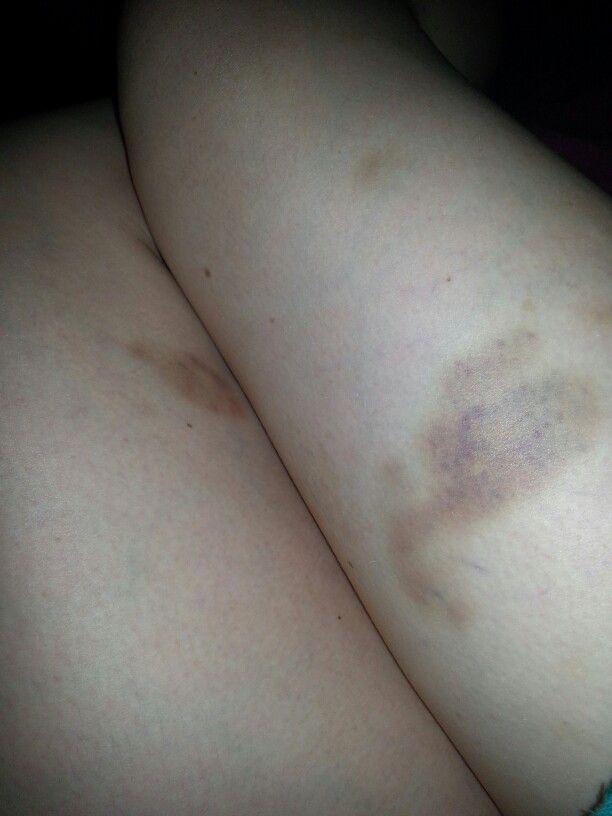 Skate bruises and various marks.. Ouch.