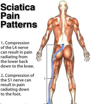 25+ best ideas about sciatic nerve on pinterest | sciatic nerve, Human Body