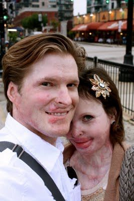 burn victims dating site