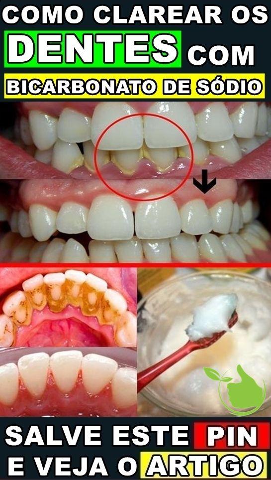 Como Clarear Os Dentes Em Casa Com Bicarbonato De Sodio Beleza E