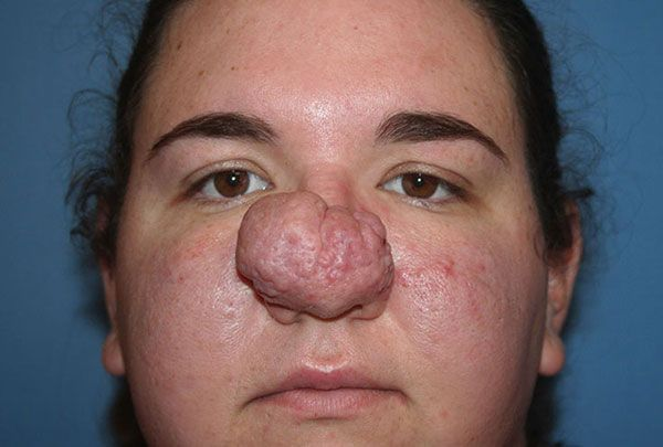 Diagnosed with rhinophyma, Sarah underwent a surgery to ...
