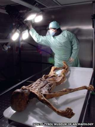 Oetzi the Iceman's blood is world's oldest - BBC News