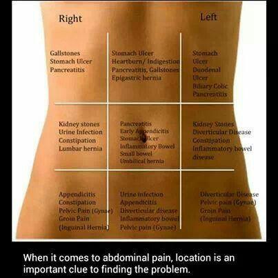 Abdominal pain chart | Health Info | Abdominal pain