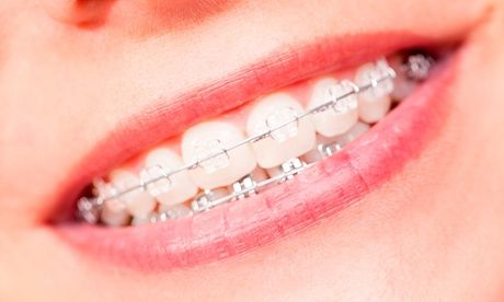 Dental Clean, Scale and Polish or Choice of Orthodontic Braces at Kamilia Poly Clinic*  Dental Clean, Scale and Polish  #Beauty #BeautyTreatment #Braces-Metal/Ceramic #DailyDeals #DentistryDentalCare #Dubai #Groupon #KamiliaPolyClinic #Massage #SPA #BeautyCare #BeautyTreatments #SpaMassage #UAEdeals #DubaiOffers #OffersUAE #DiscountSalesUAE #DubaiDeals #Dubai #UAE #MegaDeals #MegaDealsUAE #UAEMegaDeals  Offer Link: https://discountsales.ae/beauty/kamilia-poly-clinic-21-2/