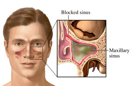 How to get rid of a pimple inside nose?