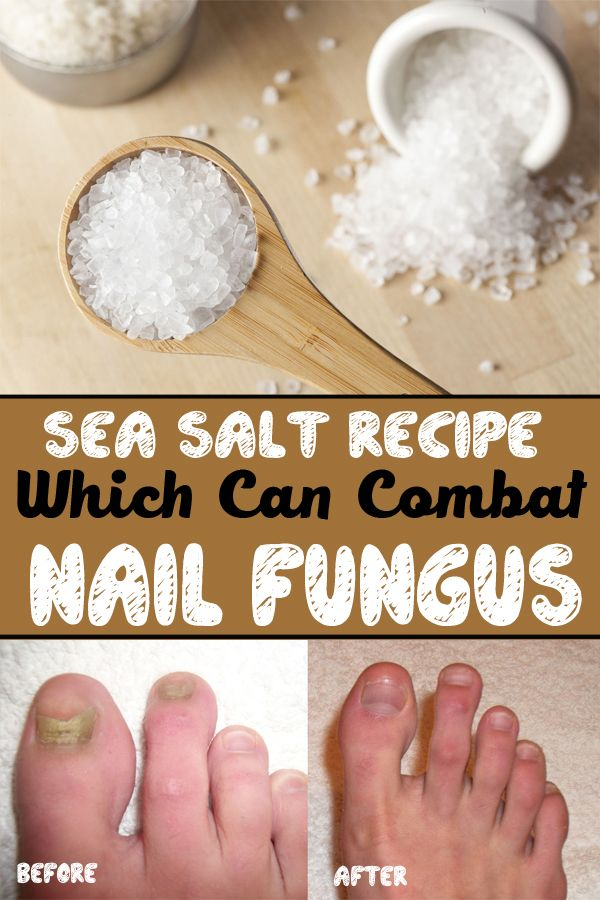 Find out how to get rid of nail fungus, using sea salt, in just one week.