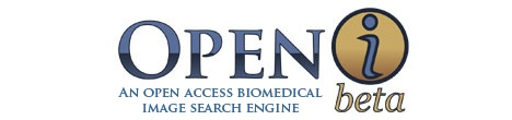 Openi Home Page Logo - open access biomedical image search engine