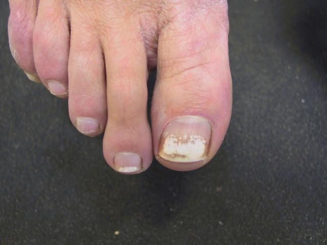 Black toe nail fungus