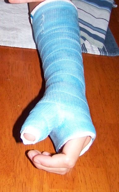 How to cope with a broken arm, etc.Arm Cast, Cast On Arm, Broken Bone