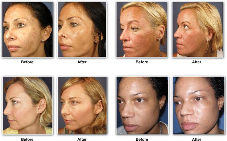 Bioelements Skin Care Bioelements Pinterest Skin Care