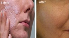 Large pores can always pop up, no matter how well …
