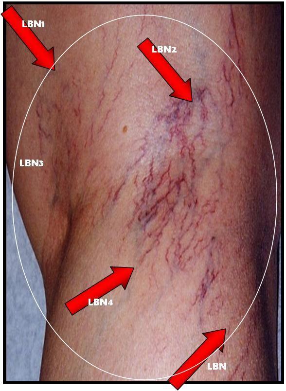 Clitoral varicose veins vulva
