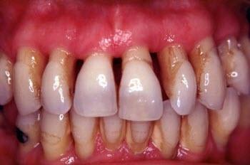 TotDental te resuelve tus problemas con la periodoncia