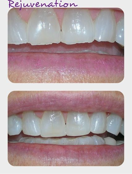 Dental bonding is used in cosmetic dentistry to rejuvenate and conceal cracks, chips, staining, and other cosmetic imperfections. Dentaltown