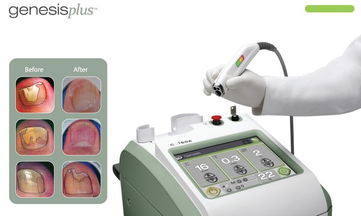 More information about the Cutera Genesis Plus laser we use in our Agoura Hills office.