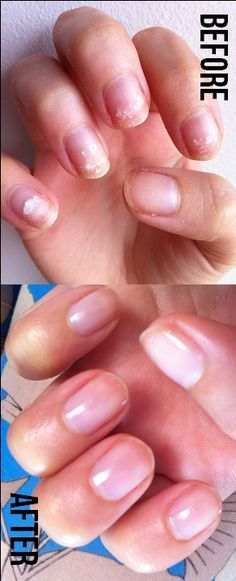 OPI's Nail Envy...Wow, I've heard good things about this stuff, but after reading this article and seeing these pics, I MUST try this stuff.  Since getting RA, my nails haven't been as healthy as they were and I suffer a lot more splitting and breakage.  This stuff may help.  *Fingers crossed it does!*