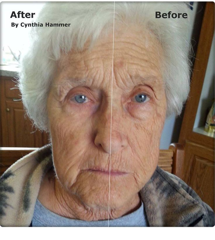 Instantly Ageless!   See a demo and find out how you can get a FREE SAMPLE!  Get youthful skin now! http://2minuteskinmiracle.com/warm/?u=1759