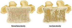 Ayurveda Treatment for Low Bone Density   AyurLeaf Herbals
