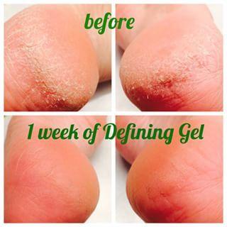 Cracked heals? Defining gel to the rescue.   www.teamtenacity.net