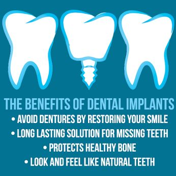 Have questions about tooth replacement?