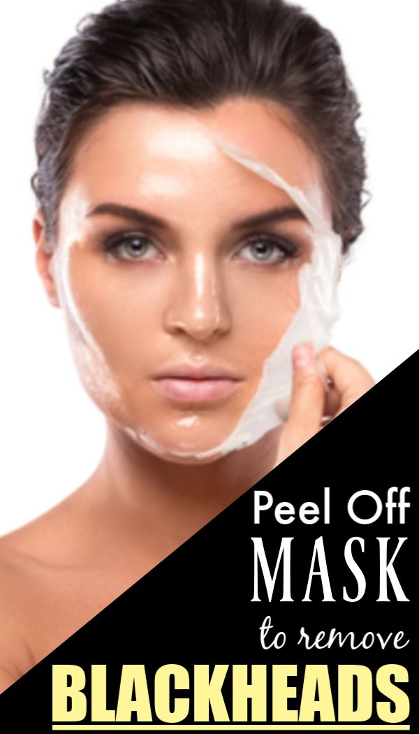 THIS peel off mask can remove blackheads and pimples overnight (Natural and fast way)