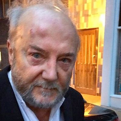 George Galloway,  a victim of vicious Zionist physical attack is released from the hospital.
