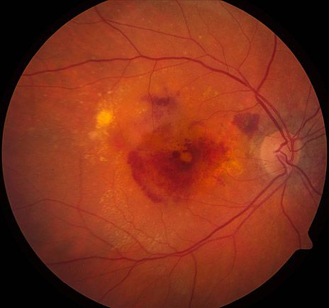 31 best MACULAR images on Pinterest Eye facts, Eyes and Health - presumed ocular histoplasmosis