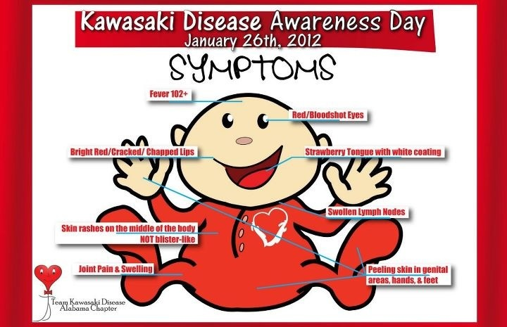 Kawasaki Disease  Please make people aware of this disease. You only need one or more of these symptoms. My son only had a fever, slight rash, and red eyes. They thought he had a virus.