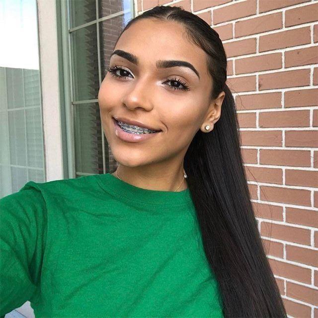 H a i R Hair en 2019 Appareil dentaire, Orthodontie et