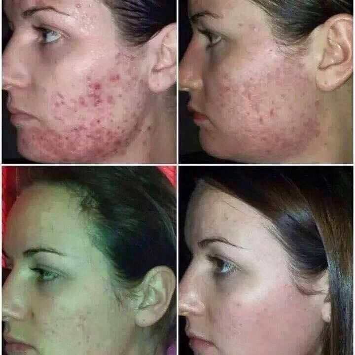 This product is amazing for acne and other skin conditions! Www.rockford.jeunesseglobal.com