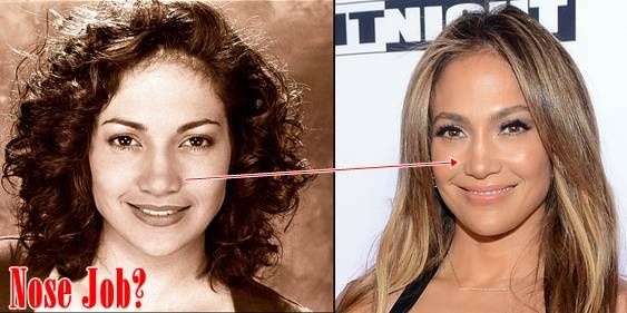 Jennifer Lopez Before and After Plastic Surgery Nose Job