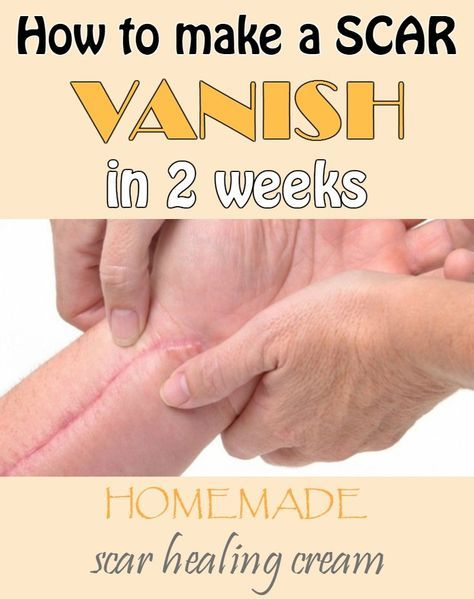 How to make a scar vanish in 2 weeks - Homemade scar healing cream - 101BeautyTips.org