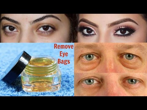 How to Remove Eye Bags/Dark Circles/Puffiness Naturally at Home || 100% WORKS - YouTube